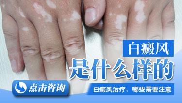 白癜风是遗传疾病吗